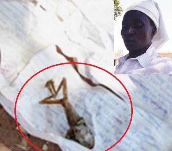 زن بارداری که از شکمش بچه قورباغه بیرون آمد +عکس