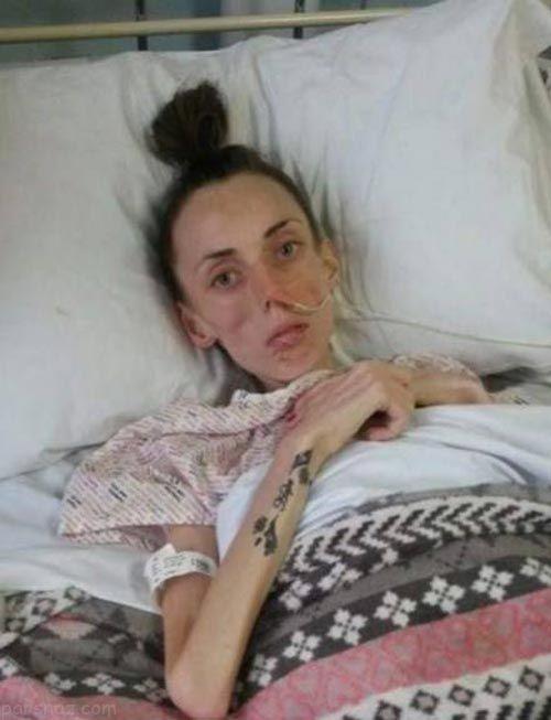 رژیم لاغری دختر زیبا را راهی بیمارستان کرد