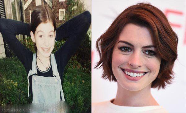 تغییرات چهره زیباترین ستاره های زن و مرد مشهور در جهان +عکس