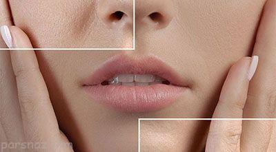 بهترین روش برای رفع منافذ باز پوست |چگونه منافذ باز پوست را از بین ببریم؟