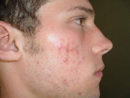 بهترین روش های درمان جوش صورت به طور قطعی