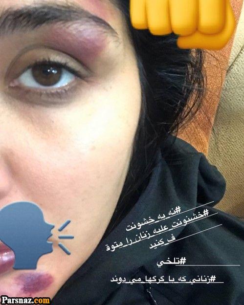 حمله به مریم معصومی در خیابان و کتک زدن او +عکس
