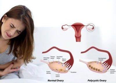 همه چیز درباره بیماری تخمدان پلی کیستیک خانم ها