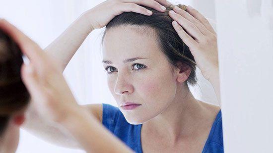 بهترین روش ها برای درمان ریزش موی خانم ها   درمان ریزش مو