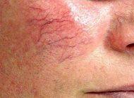 واریس رگ های صورت و راه درمان آن   عوامل تاثیر گذار در واریس