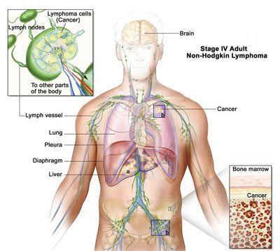 بیماری لنفوم چیست و چطور درمان می شود؟