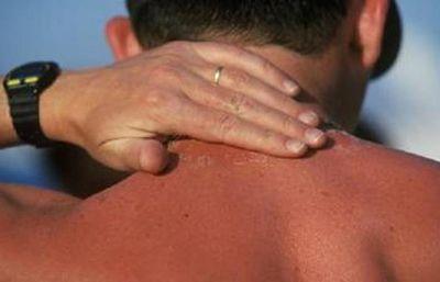 بهترین روش های درمان آفتاب سوختگی شدید در خانه
