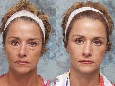 همه چیز درباره انجام جراحی زیبایی پلک خانم ها