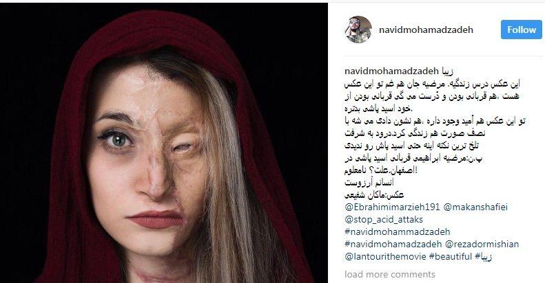 بیوگرافی مرضیه ابراهیمی دختر اصفهانی + ازدواج و عکس های قبل از اسید پاشی