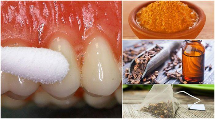 بهترین درمان های فوری خانگی برای تسکین دندان درد