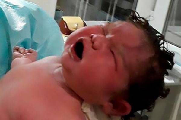 زبان این زن حامله شده است! + عکس و عجیب ترین اخبار جهان