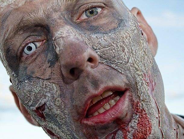 عجیب ترین بیماری هایی که انسان به آنها مبتلا می شود + عکس
