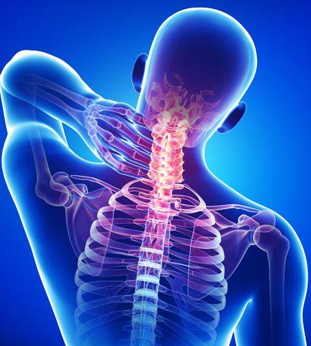 درمان خانگی گردن درد و گرفتگی عضلات گردن | ساده ترین روش ها برای درمان گردن درد