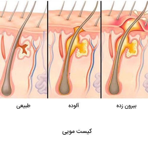 با استفاده از لیزر درمان کیست مویی دیگر هولناک نیست