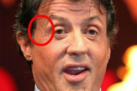 چهره های معروفی که جای زخم های بزرگی روی بدن شان دارند