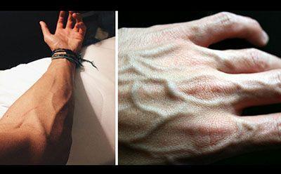 برجستگی رگ های بدن نشانه چیست؟ | علت دیده شدن رگ ها