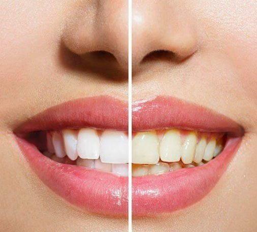 روش های خانگی سفید کردن دندان   رهایی از دندان های زرد و سفید شدن سریع دندان