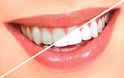 روش های خانگی سفید کردن دندان | رهایی از دندان های زرد و سفید شدن سریع دندان