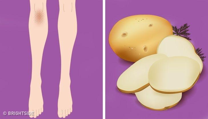 روش های خانگی برای روشن کردن پوست صورت | ساده ترین راهکارها