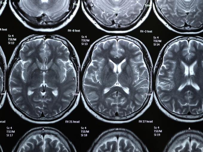 حقایقی درباره مغز انسان | مغز راننده تاکسی ها فرق دارد
