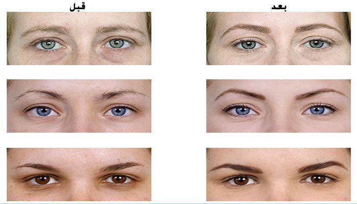 کدام مدل ابرو مناسب صورت شما است؟ | راهنمای آرایش مدل ابرو در انواع طرح های مختلف ابرو