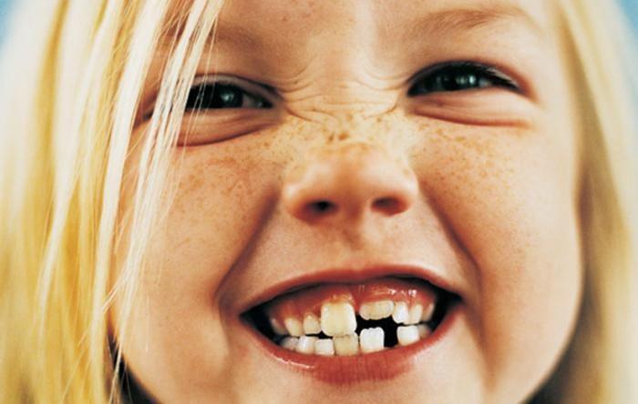 علت زرد شدن دندان ها + روش درمان و جلوگیری از زرد شدن دندان