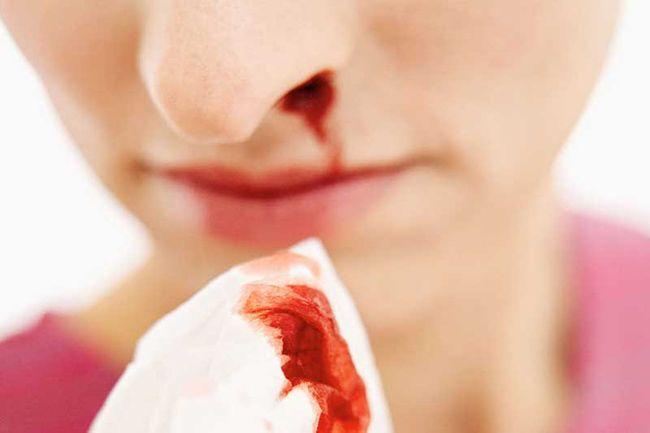 مهم ترین علل خون دماغ شدن + روش های درمان خانگی خون دماغ