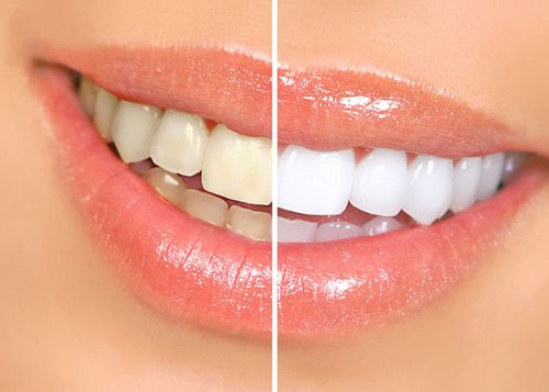 روش های خانگی برای سفید کردن دندان | از جوش شیرین تا سرکه سیب