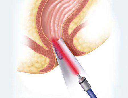 درمان بواسیر و بیماری های نشیمنگاهی در کلینیک نور