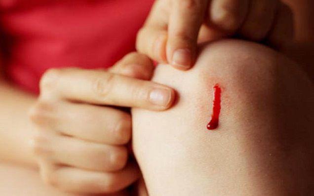 تعبیر خواب خون | دیدن خون و خونریزی در خواب چه تعابیری دارد؟