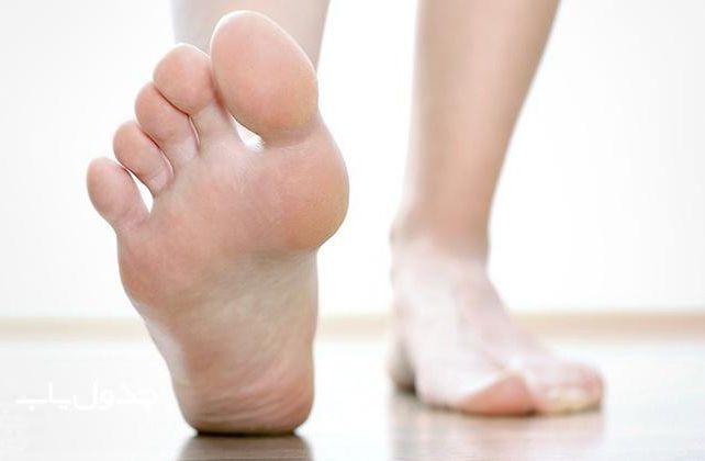 10 بهترین روش خانگی درمان پینه پا + شرح علل ایجاد پینه دست و پا