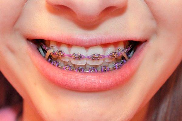 راه های از بین بردن پلاک دندان   15 روش آسان و کاربردی