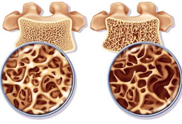 علائم و نشانه های پوکی استخوان + راه های درمان دارویی و طبیعی