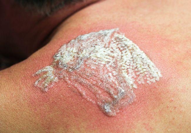 10 مهم ترین عوارض تاتو کردن | ممنوعیت های تاتو زدن روی بدن