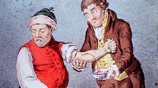 10 عجیب ترین بیماری های دنیا + 10 روش درمانی عجیب و غریب
