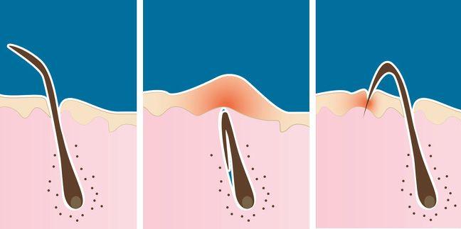 بهترین روش اصلاح موهای زائد بدن برای خانم ها
