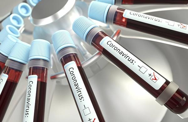 باورهای غلط در مورد ویروس کرونا (کووید ۱۹) | شایعات کرونایی که نباید باور کنید