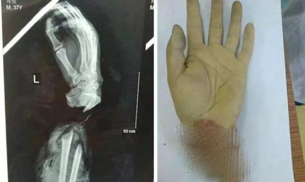 قطع کردن دست زن 22 ساله برای دریافت بیمه! + عکس