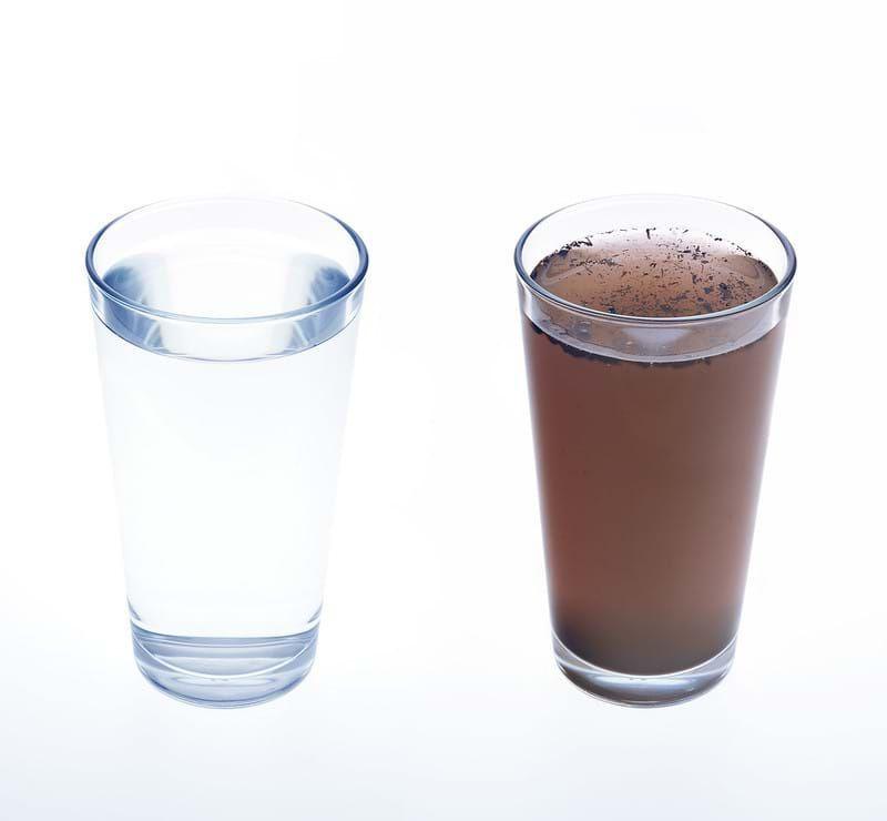 مزایای دستگاه تصفیه آب خانگی برای سلامت پوست و بدن
