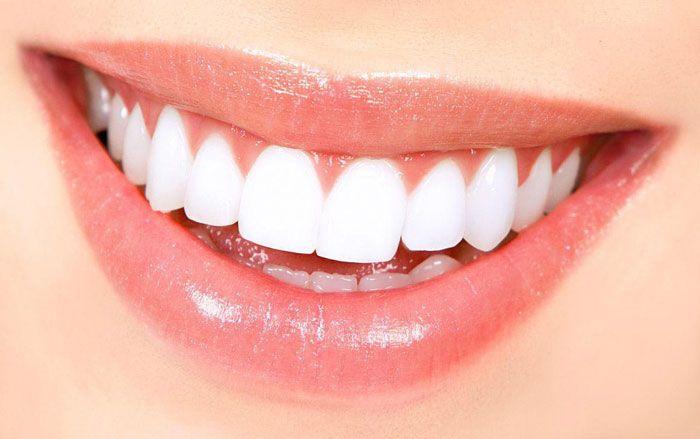 آشنایی با روش های کاشت دندان