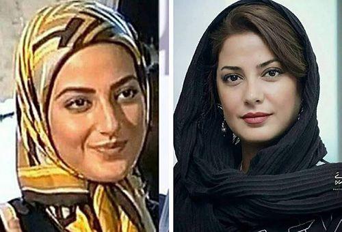 عکس بازیگران زن ایرانی قبل و بعد از عمل زیبایی + توضیحات