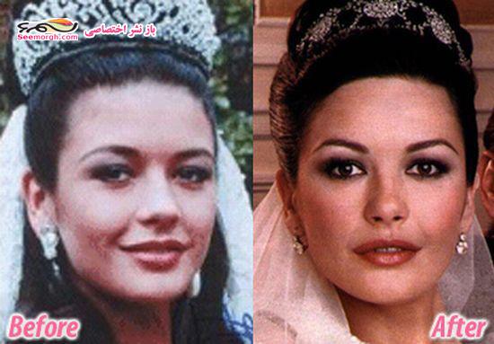 عمل زیبایی معروف ترین زنان هالیوود