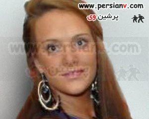 زیباتر شدن دختری بعد از سوختن با روغن!! (+عکس)