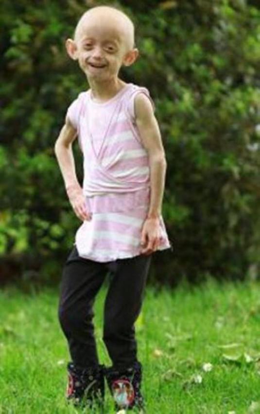 دختری که در کودکی شبیه زنی 80 ساله شد!!+عکس