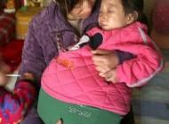 دختری عجیبی که شکمش 1 متر باد کرده!!(+عکس)