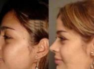 عکسهای قبل و بعد عمل زیبایی 1 مانکن معروف