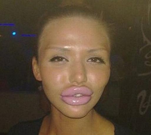 دختری که چهره اش را مثل آنجلینا جولی کرد + عکس