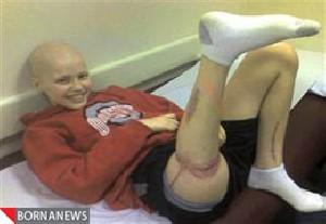 پزشکان پای پسری را برعکس پیوند زدند! + عکس