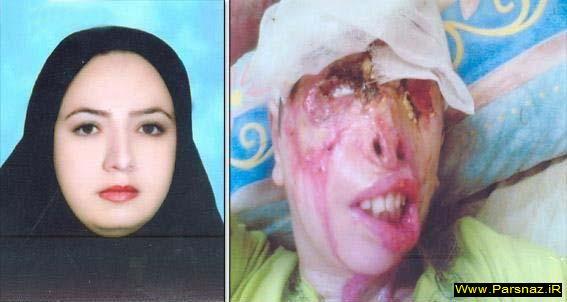 عکس های وحشتناک از اسید پاشی به یک مادر و فرزند (18+)