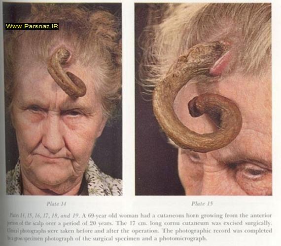 عکس هایی از زن و مرد های عجیب شاخ دار